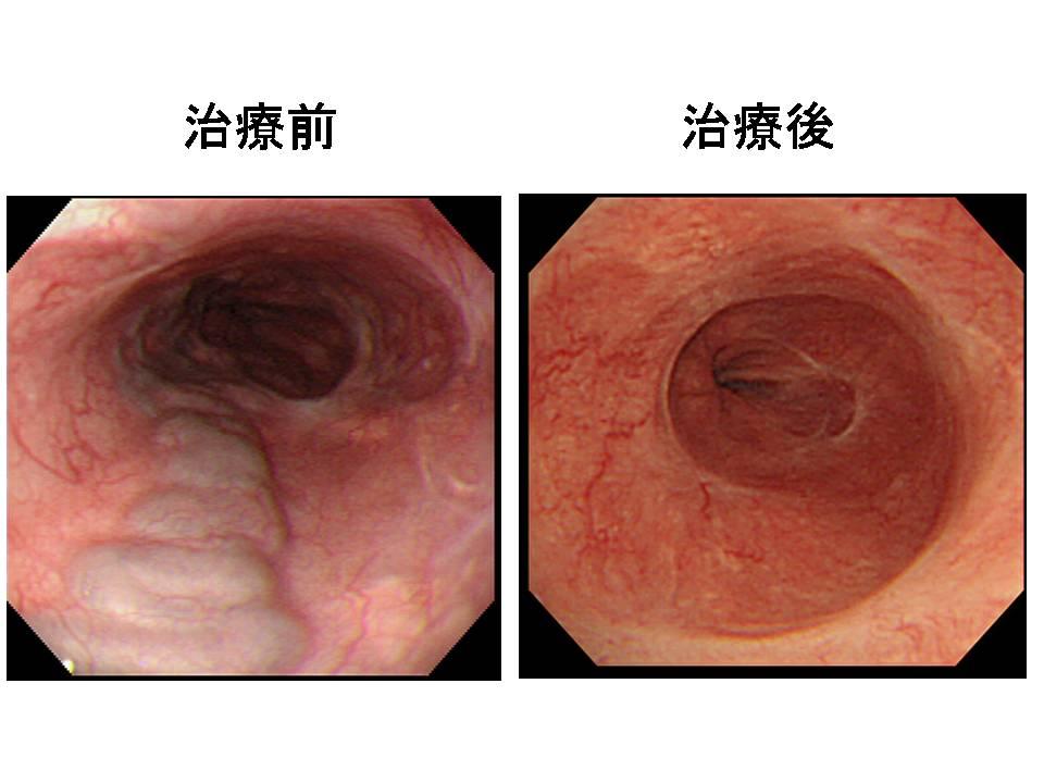 静脈 瘤 食道